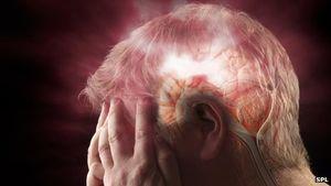 Schlaganfall: Gehirn hält Sauerstoffmangel aus