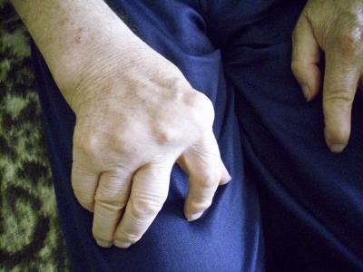 439676 web R K B by Uta Herbert pixelio.de  Rheuma: Gezielte Therapie durch schnelle Diagnose