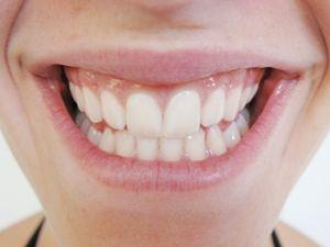 Aminosäure hilft bei Karies und Zahnfleischbluten