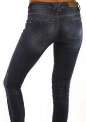 Modewahn: Enge Jeans ruinieren die Gesundheit