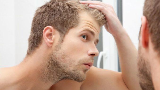 Haarausfall ist ein hoch sensibles Thema. obs/Dr. Wolff-Forschung/Shutterstock